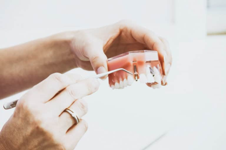 What Are Mini Dental Implants? (Cost, Pros and Cons)